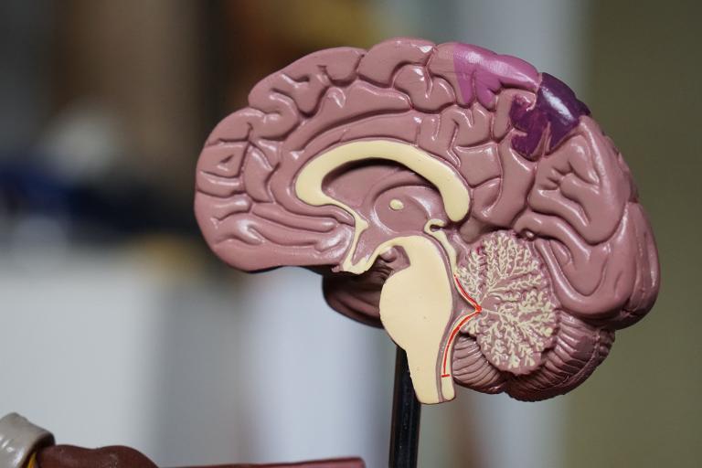 a model of a brain